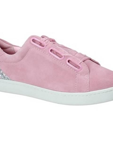 Ružové tenisky Fornarina