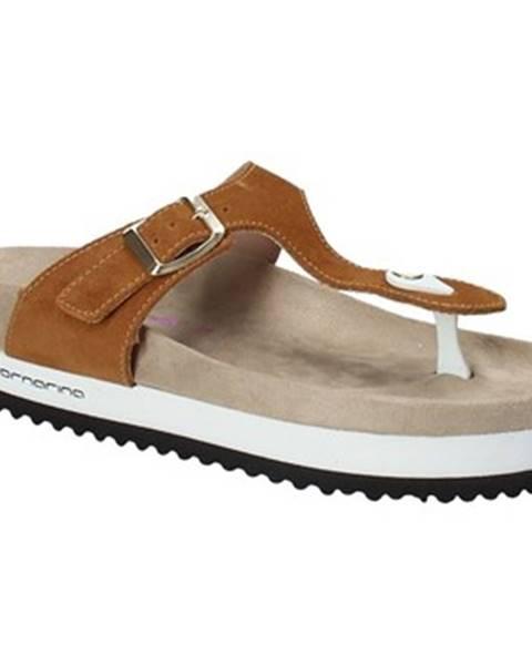 Žlté topánky Fornarina