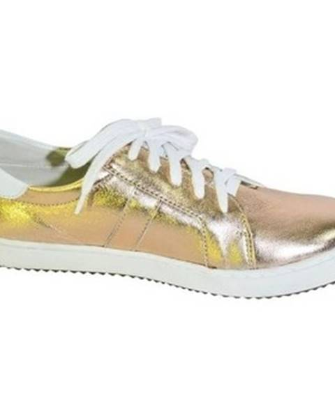 Zlaté topánky Alex